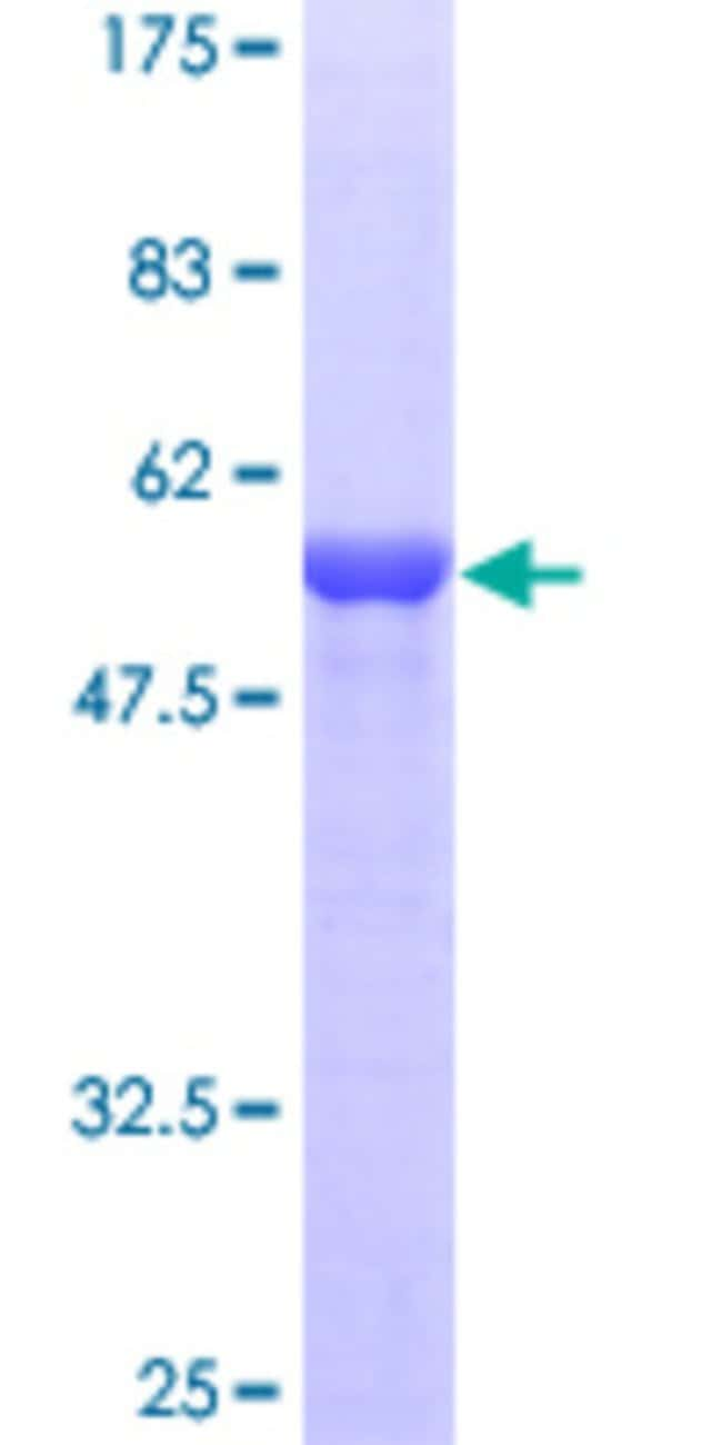 Abnova™Human ECHS1 Full-length ORF (AAH08906, 13 a.a. - 290 a.a.) Recombinant Protein with GST-tag at N-terminal 25μg Abnova™Human ECHS1 Full-length ORF (AAH08906, 13 a.a. - 290 a.a.) Recombinant Protein with GST-tag at N-terminal