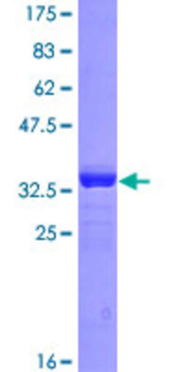 Abnova™Human EDNRB Partial ORF (AAH14472, 27 a.a. - 101 a.a.) Recombinant Protein with GST-tag at N-terminal 10μg Abnova™Human EDNRB Partial ORF (AAH14472, 27 a.a. - 101 a.a.) Recombinant Protein with GST-tag at N-terminal