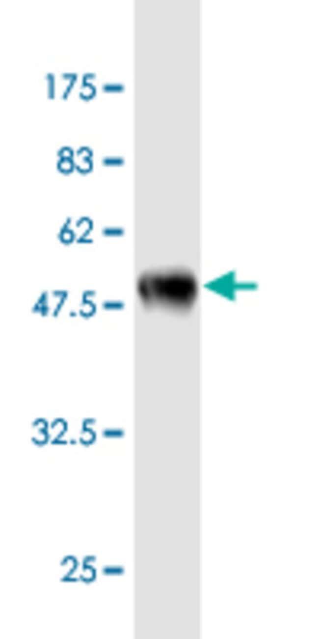 EEF1B2 Mouse anti-Human, Clone: 2C11, Abnova 100μg; Unlabeled:Antibodies