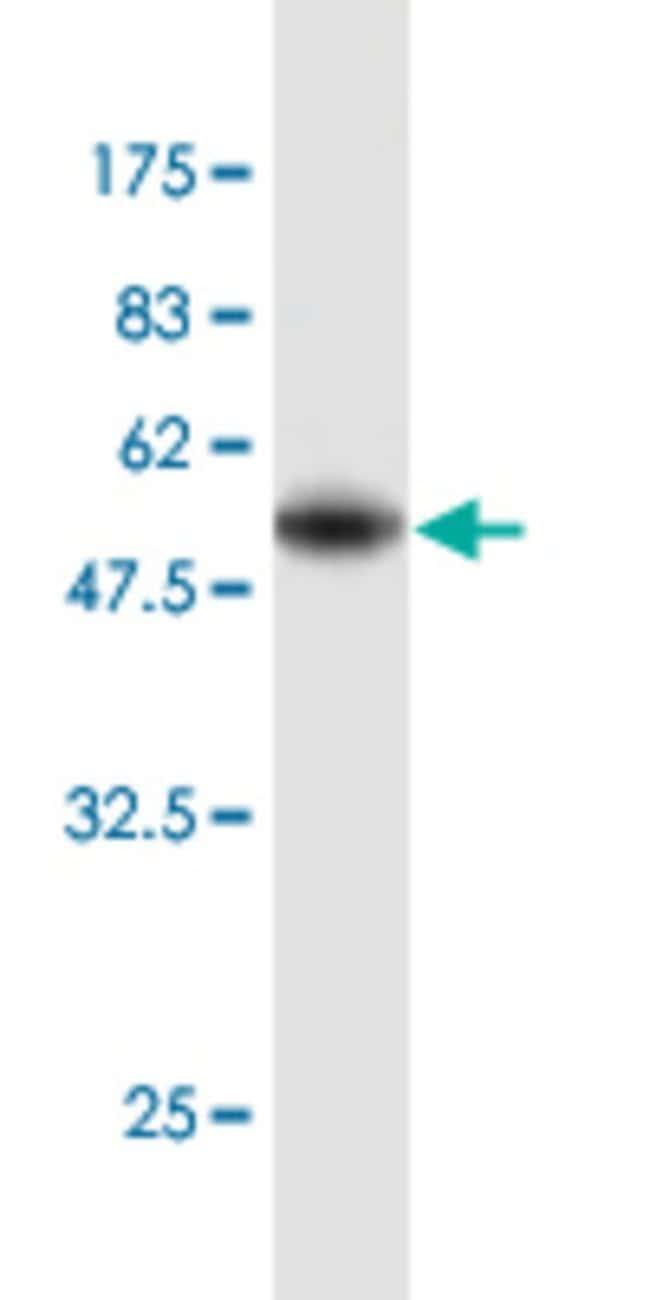 EEF1B2 Mouse anti-Human, Clone: 3H7, Abnova 100μg; Unlabeled:Antibodies