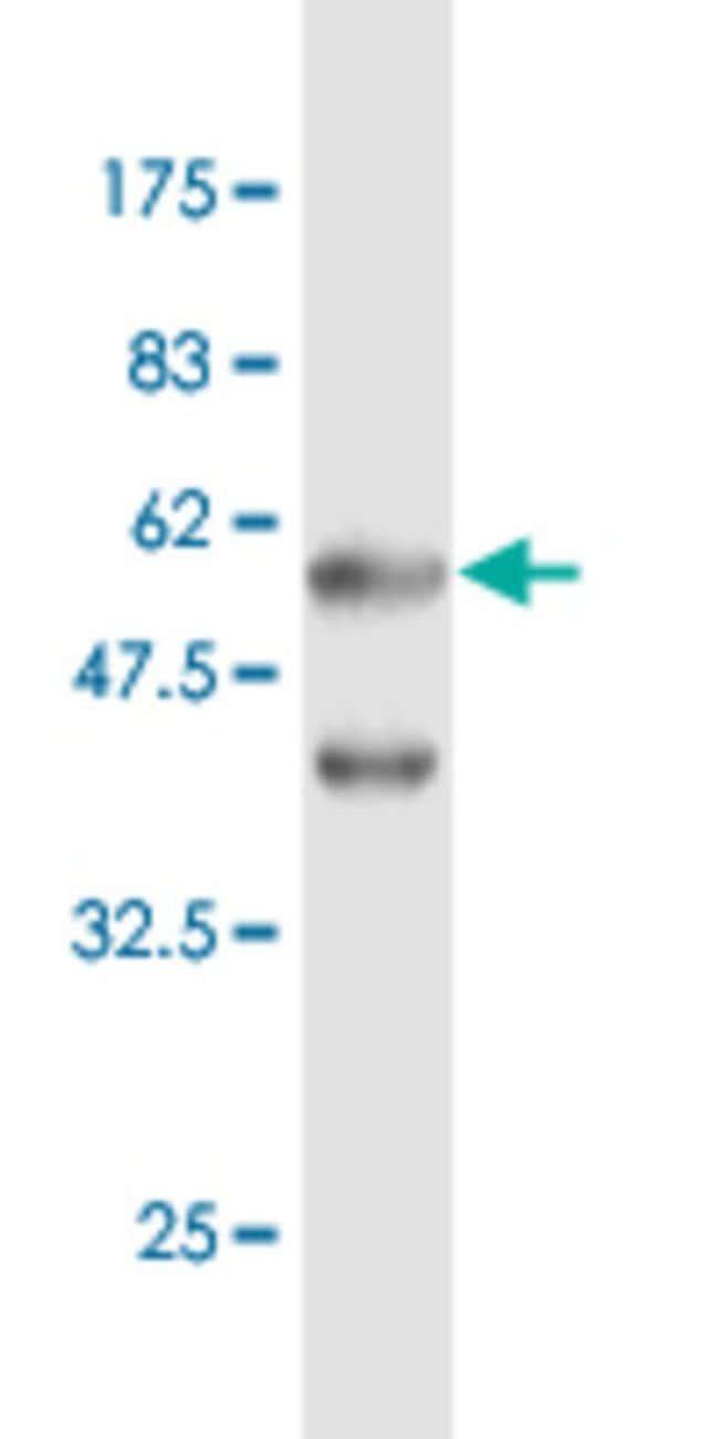 EEF1B2 Mouse anti-Human, Mouse, Rat, Clone: 2G10, Abnova 100μg; Unlabeled:Antibodies