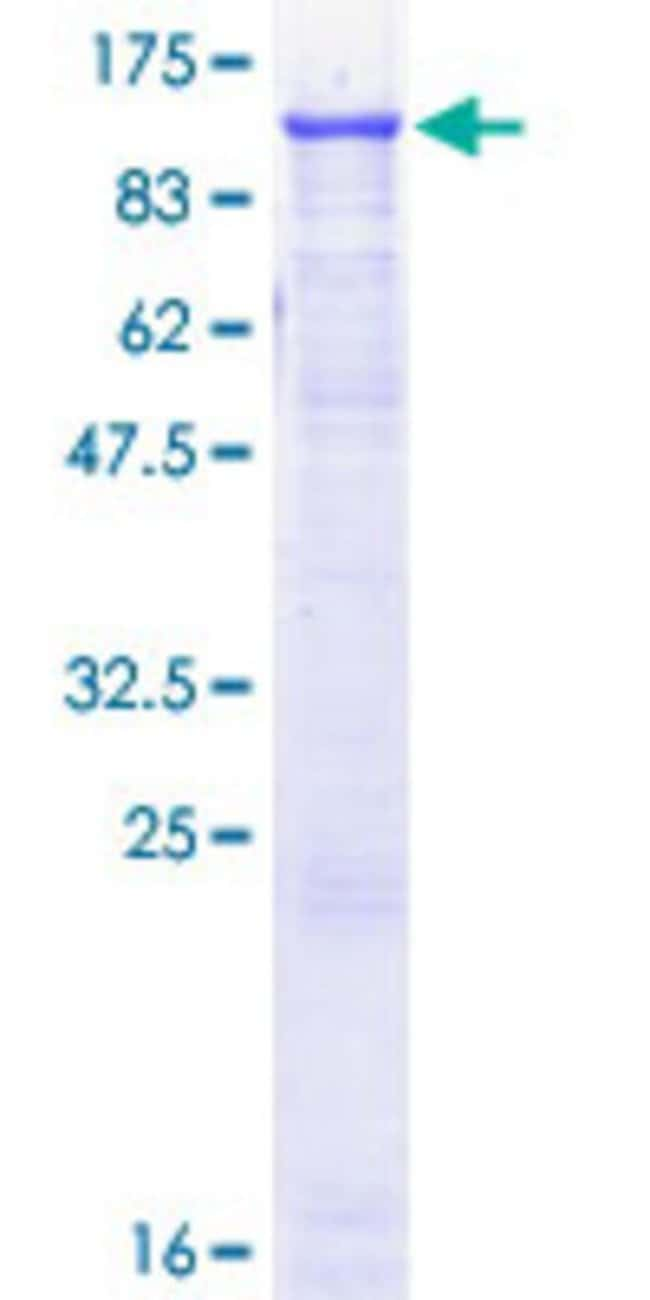 Abnova™Human EEF2 Full-length ORF (NP_001952.1, 1 a.a. - 858 a.a.) Recombinant Protein with GST-tag at N-terminal 10μg Abnova™Human EEF2 Full-length ORF (NP_001952.1, 1 a.a. - 858 a.a.) Recombinant Protein with GST-tag at N-terminal