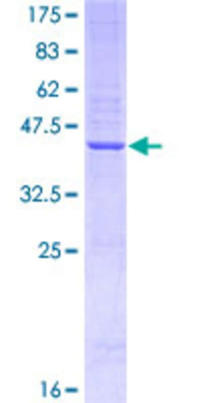 Abnova™Human EFNA1 Partial ORF (AAH32698, 21 a.a. - 130 a.a.) Recombinant Protein with GST-tag at N-terminal 10μg Abnova™Human EFNA1 Partial ORF (AAH32698, 21 a.a. - 130 a.a.) Recombinant Protein with GST-tag at N-terminal