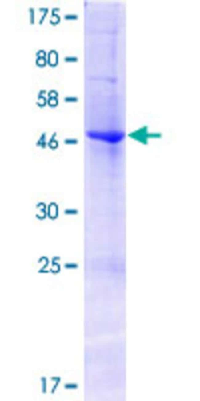 Abnova™Human EFNA2 Full-length ORF (AAI48728.1, 1 a.a. - 213 a.a.) Recombinant Protein with GST-tag at N-terminal 25μg Abnova™Human EFNA2 Full-length ORF (AAI48728.1, 1 a.a. - 213 a.a.) Recombinant Protein with GST-tag at N-terminal
