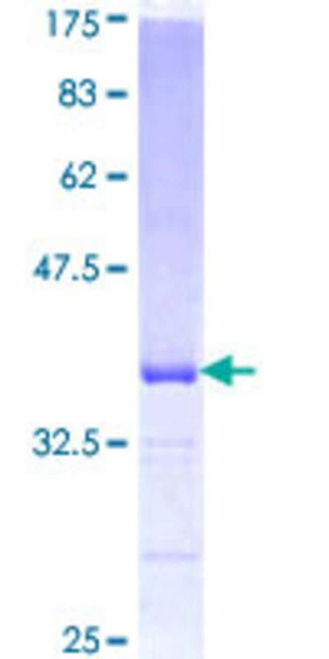Abnova™Human EFNA5 Partial ORF (NP_001953, 114 a.a. - 203 a.a.) Recombinant Protein with GST-tag at N-terminal 10μg Abnova™Human EFNA5 Partial ORF (NP_001953, 114 a.a. - 203 a.a.) Recombinant Protein with GST-tag at N-terminal