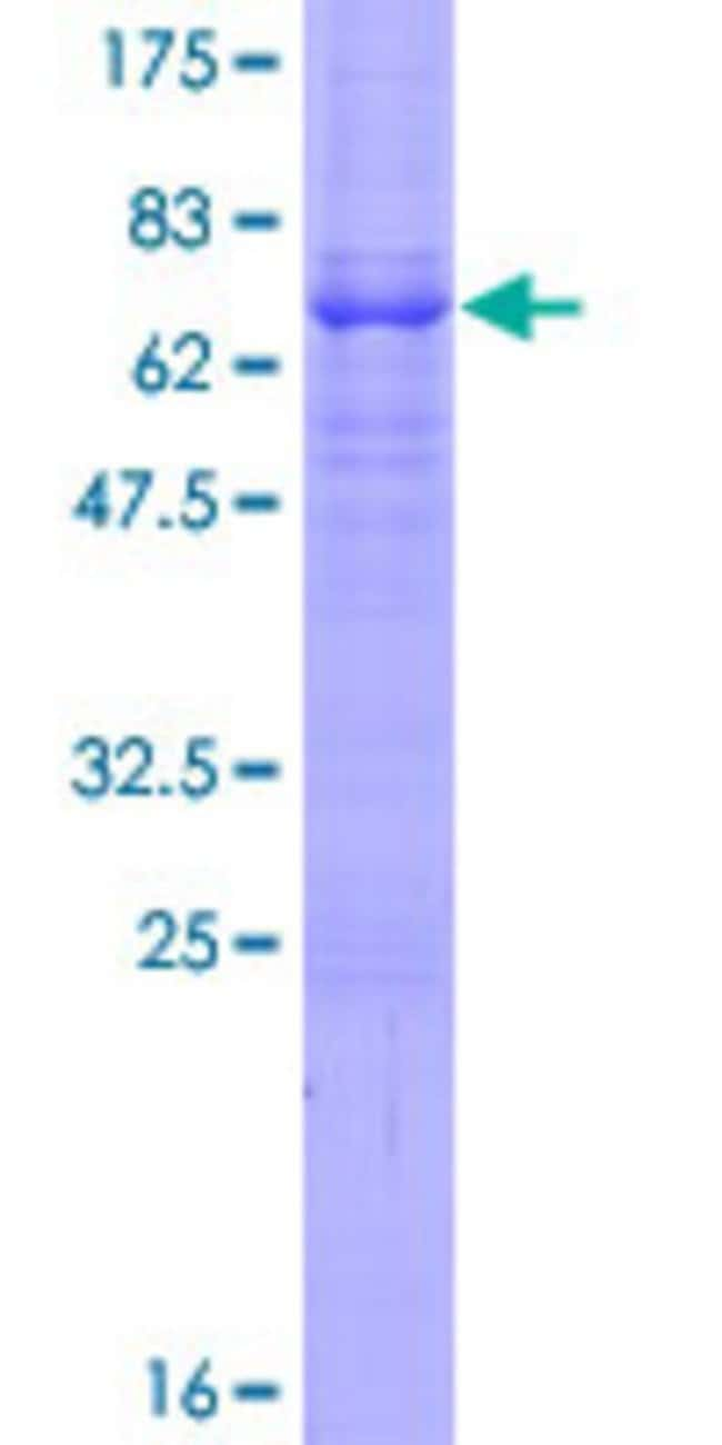 Abnova™Human EFNB1 Full-length ORF (NP_004420.1, 1 a.a. - 346 a.a.) Recombinant Protein with GST-tag at N-terminal 10μg Abnova™Human EFNB1 Full-length ORF (NP_004420.1, 1 a.a. - 346 a.a.) Recombinant Protein with GST-tag at N-terminal