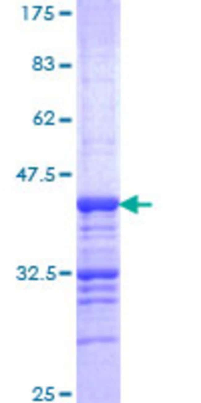 Abnova™Human CELSR2 Partial ORF (NP_001399, 124 a.a. - 233 a.a.) Recombinant Protein with GST-tag at N-terminal 10μg Abnova™Human CELSR2 Partial ORF (NP_001399, 124 a.a. - 233 a.a.) Recombinant Protein with GST-tag at N-terminal
