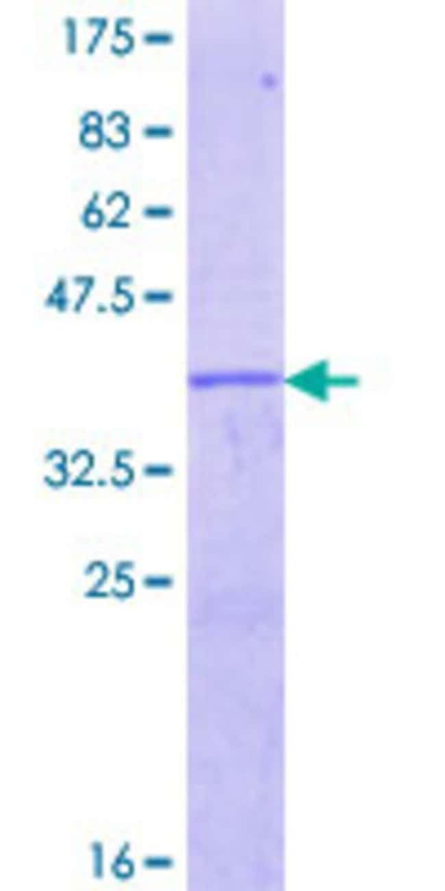 Abnova™Human EGR4 Partial ORF (NP_001956.1, 377 a.a. - 486 a.a.) Recombinant Protein with GST-tag at N-terminal 25μg Abnova™Human EGR4 Partial ORF (NP_001956.1, 377 a.a. - 486 a.a.) Recombinant Protein with GST-tag at N-terminal