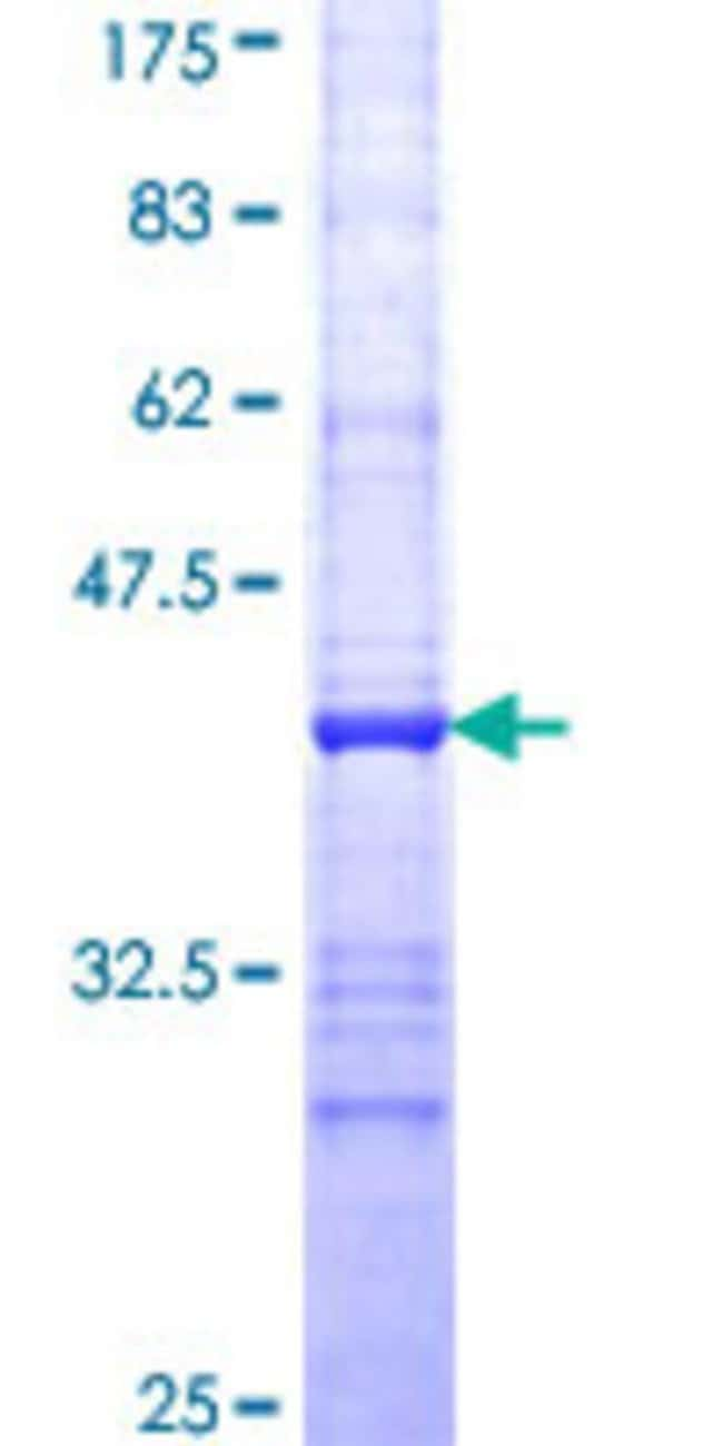 Abnova™Human EIF2S3 Partial ORF (NP_001406, 383 a.a. - 472 a.a.) Recombinant Protein with GST-tag at N-terminal 25μg Abnova™Human EIF2S3 Partial ORF (NP_001406, 383 a.a. - 472 a.a.) Recombinant Protein with GST-tag at N-terminal
