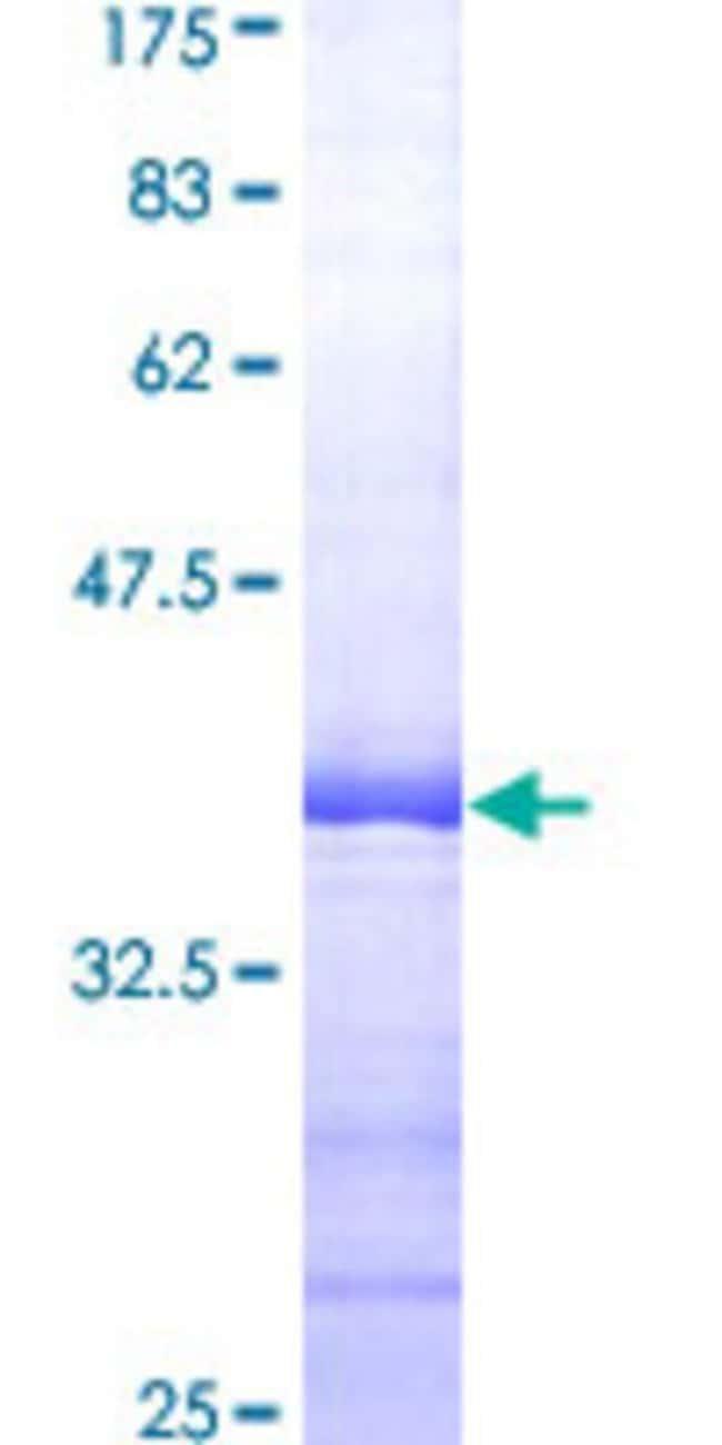 Abnova™Human EIF5A Partial ORF (AAH00751, 55 a.a. - 154 a.a.) Recombinant Protein with GST-tag at N-terminal 10μg Abnova™Human EIF5A Partial ORF (AAH00751, 55 a.a. - 154 a.a.) Recombinant Protein with GST-tag at N-terminal