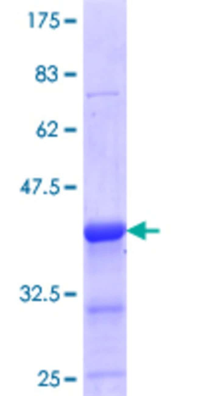 Abnova™Human ELK3 Partial ORF (NP_005221.2, 101 a.a. - 200 a.a.) Recombinant Protein with GST-tag at N-terminal 10μg Abnova™Human ELK3 Partial ORF (NP_005221.2, 101 a.a. - 200 a.a.) Recombinant Protein with GST-tag at N-terminal