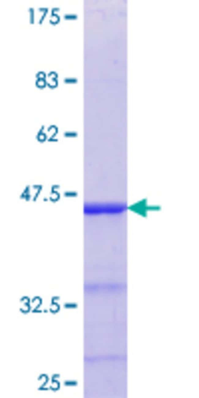 Abnova™Human ELK4 Partial ORF (NP_001964.2, 118 a.a. - 206 a.a.) Recombinant Protein with GST-tag at N-terminal 10μg Abnova™Human ELK4 Partial ORF (NP_001964.2, 118 a.a. - 206 a.a.) Recombinant Protein with GST-tag at N-terminal