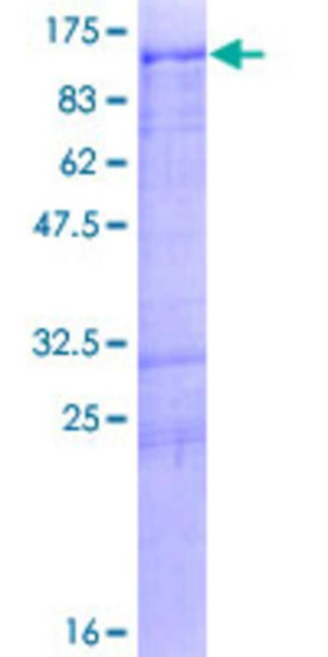 Abnova Human MARK2 Full-length ORF (NP_001034558.1, 1 a.a. - 755 a.a.)