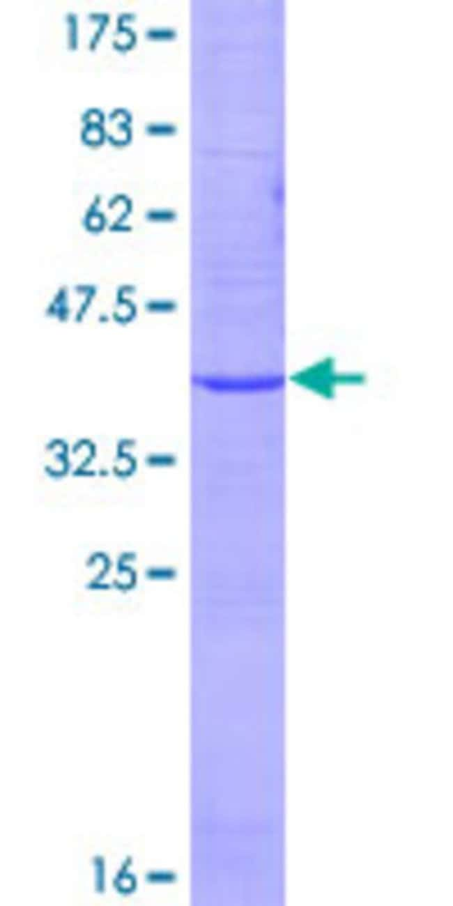 Abnova™Human EMP2 Full-length ORF (NP_001415.1, 1 a.a. - 167 a.a.) Recombinant Protein with GST-tag at N-terminal 25μg Abnova™Human EMP2 Full-length ORF (NP_001415.1, 1 a.a. - 167 a.a.) Recombinant Protein with GST-tag at N-terminal