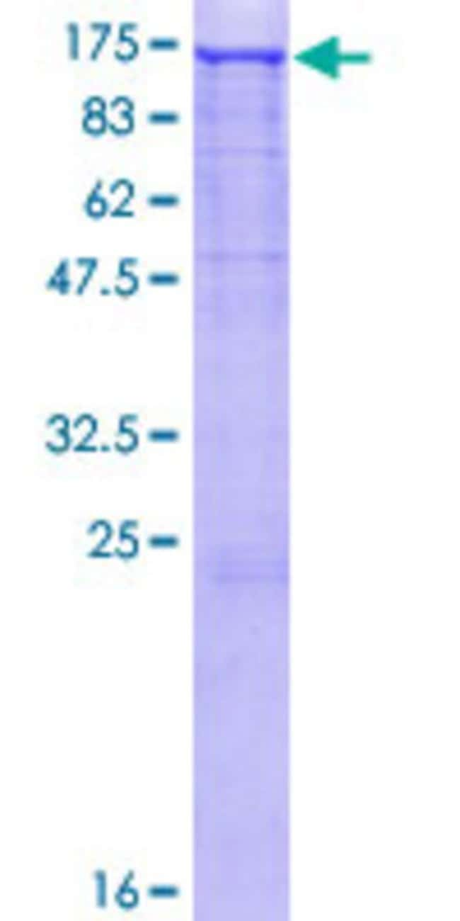 Abnova™Human EPHA3 Full-length ORF (NP_005224.2, 1 a.a. - 983 a.a.) Recombinant Protein with GST-tag at N-terminal 10μg Abnova™Human EPHA3 Full-length ORF (NP_005224.2, 1 a.a. - 983 a.a.) Recombinant Protein with GST-tag at N-terminal