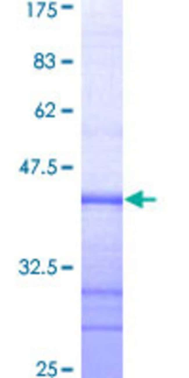 Abnova™Human EPHA3 Partial ORF (AAH63282, 202 a.a. - 326 a.a.) Recombinant Protein with GST-tag at N-terminal 10μg Abnova™Human EPHA3 Partial ORF (AAH63282, 202 a.a. - 326 a.a.) Recombinant Protein with GST-tag at N-terminal