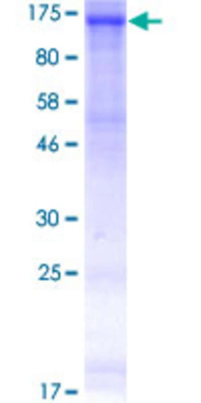 Abnova™Human EPHB3 Full-length ORF (NP_004434.2, 1 a.a. - 998 a.a.) Recombinant Protein with GST-tag at N-terminal 25μg Abnova™Human EPHB3 Full-length ORF (NP_004434.2, 1 a.a. - 998 a.a.) Recombinant Protein with GST-tag at N-terminal