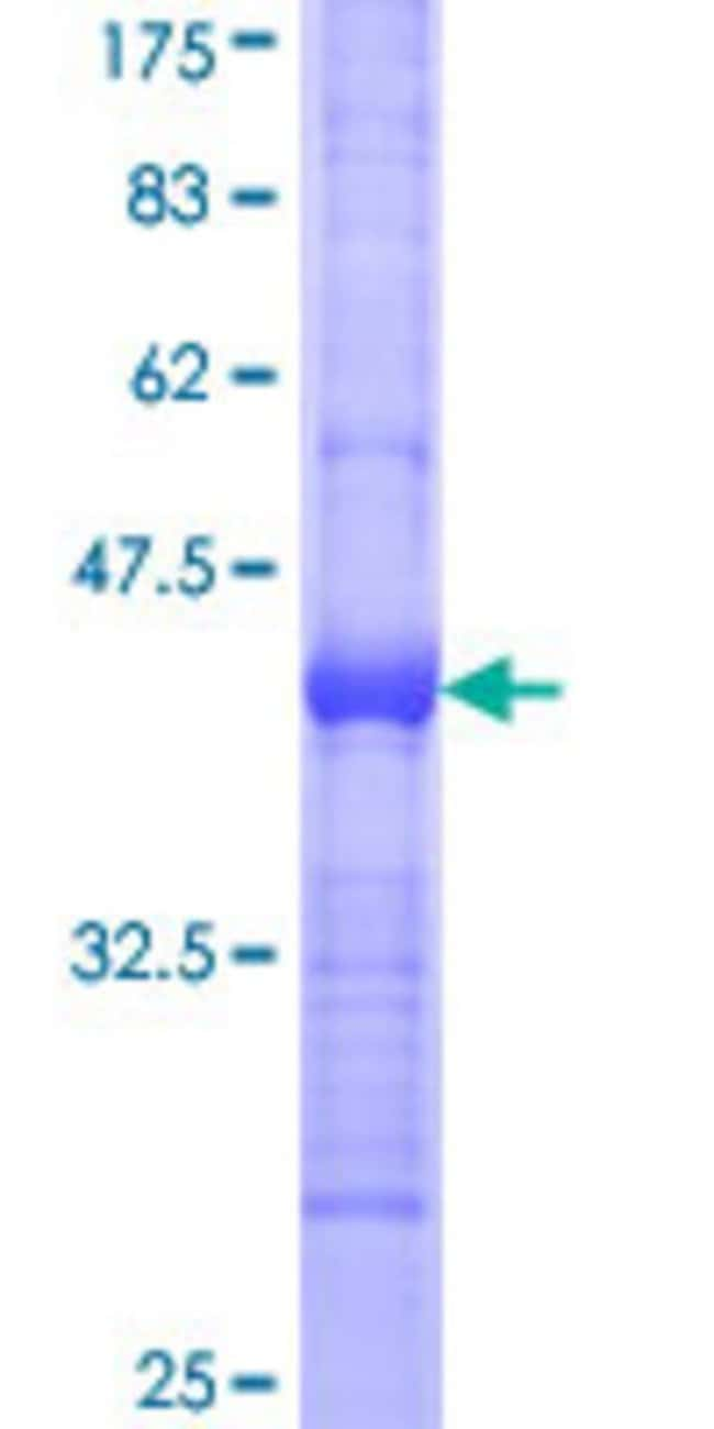 Abnova™Human EPHB6 Partial ORF (NP_004436, 23 a.a. - 122 a.a.) Recombinant Protein with GST-tag at N-terminal 10μg Abnova™Human EPHB6 Partial ORF (NP_004436, 23 a.a. - 122 a.a.) Recombinant Protein with GST-tag at N-terminal