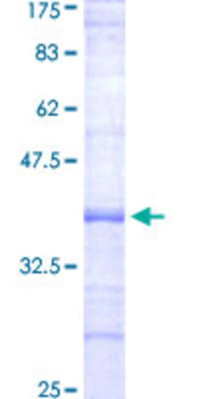 Abnova™Human EPHX2 Partial ORF (NP_001970, 456 a.a. - 555 a.a.) Recombinant Protein with GST-tag at N-terminal 25μg Abnova™Human EPHX2 Partial ORF (NP_001970, 456 a.a. - 555 a.a.) Recombinant Protein with GST-tag at N-terminal