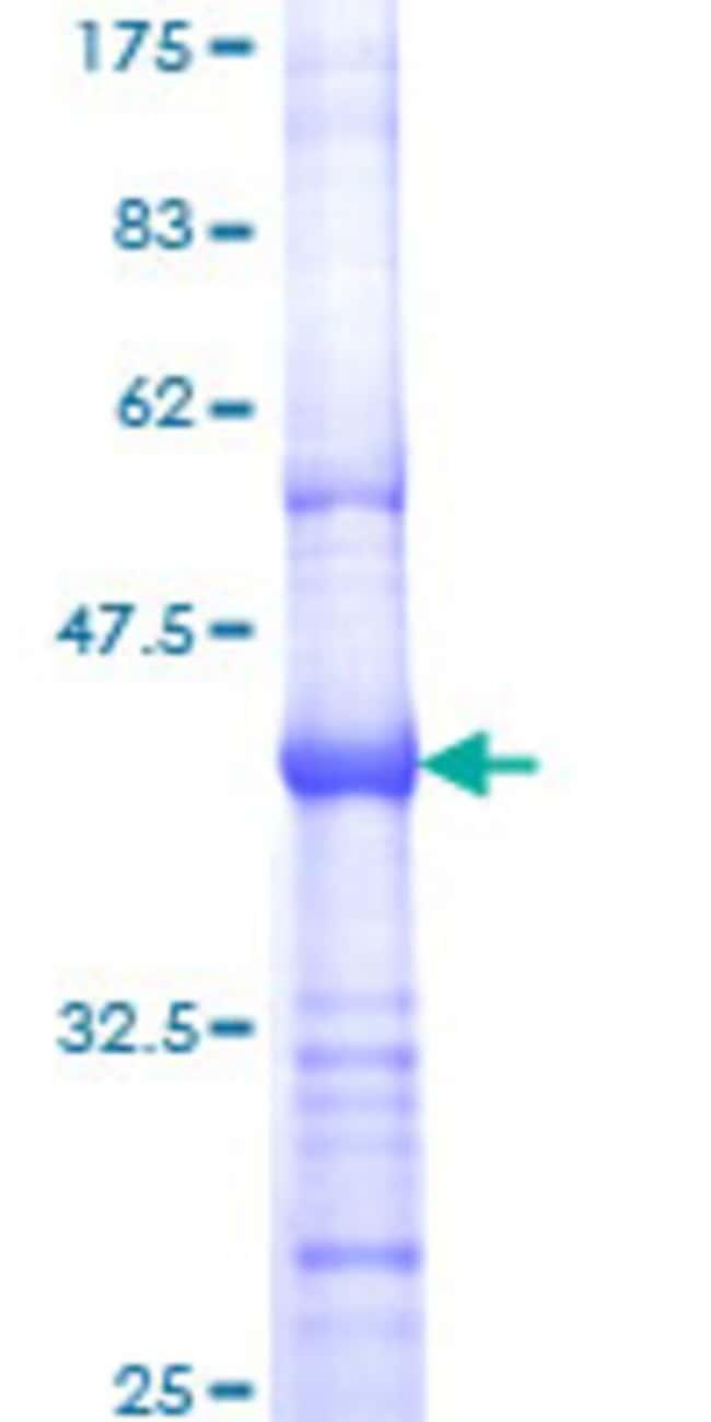 Abnova™Human ERBB2 Partial ORF (NP_004439, 22 a.a. - 121 a.a.) Recombinant Protein with GST-tag at N-terminal 25μg Abnova™Human ERBB2 Partial ORF (NP_004439, 22 a.a. - 121 a.a.) Recombinant Protein with GST-tag at N-terminal