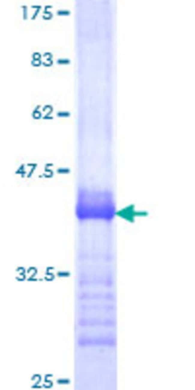 Abnova™Human EREG Partial ORF (NP_001423, 32 a.a. - 117 a.a.) Recombinant Protein with GST-tag at N-terminal 10μg Abnova™Human EREG Partial ORF (NP_001423, 32 a.a. - 117 a.a.) Recombinant Protein with GST-tag at N-terminal