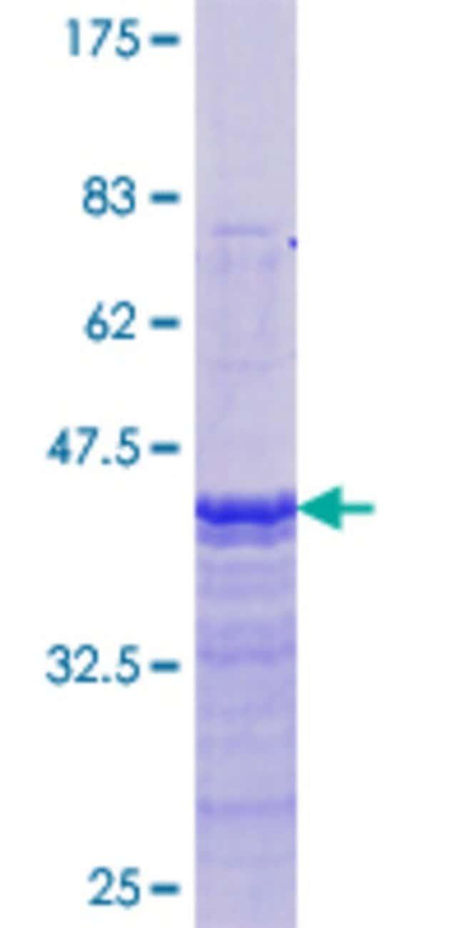 Abnova™Human ESR1 Partial ORF (NP_000116.2, 41 a.a. - 140 a.a.) Recombinant Protein with GST-tag at N-terminal 25μg Abnova™Human ESR1 Partial ORF (NP_000116.2, 41 a.a. - 140 a.a.) Recombinant Protein with GST-tag at N-terminal