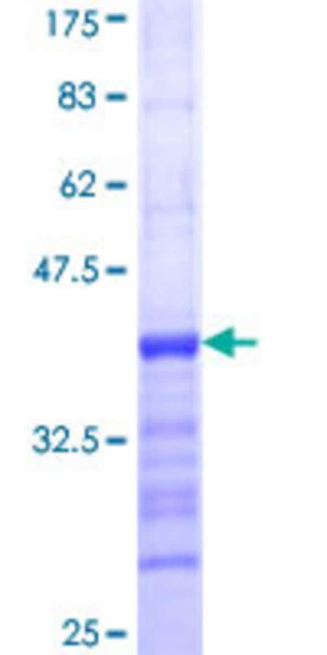 Abnova Human MECOM Partial ORF (NP_005232, 952 a.a. - 1050 a.a.) Recombinant