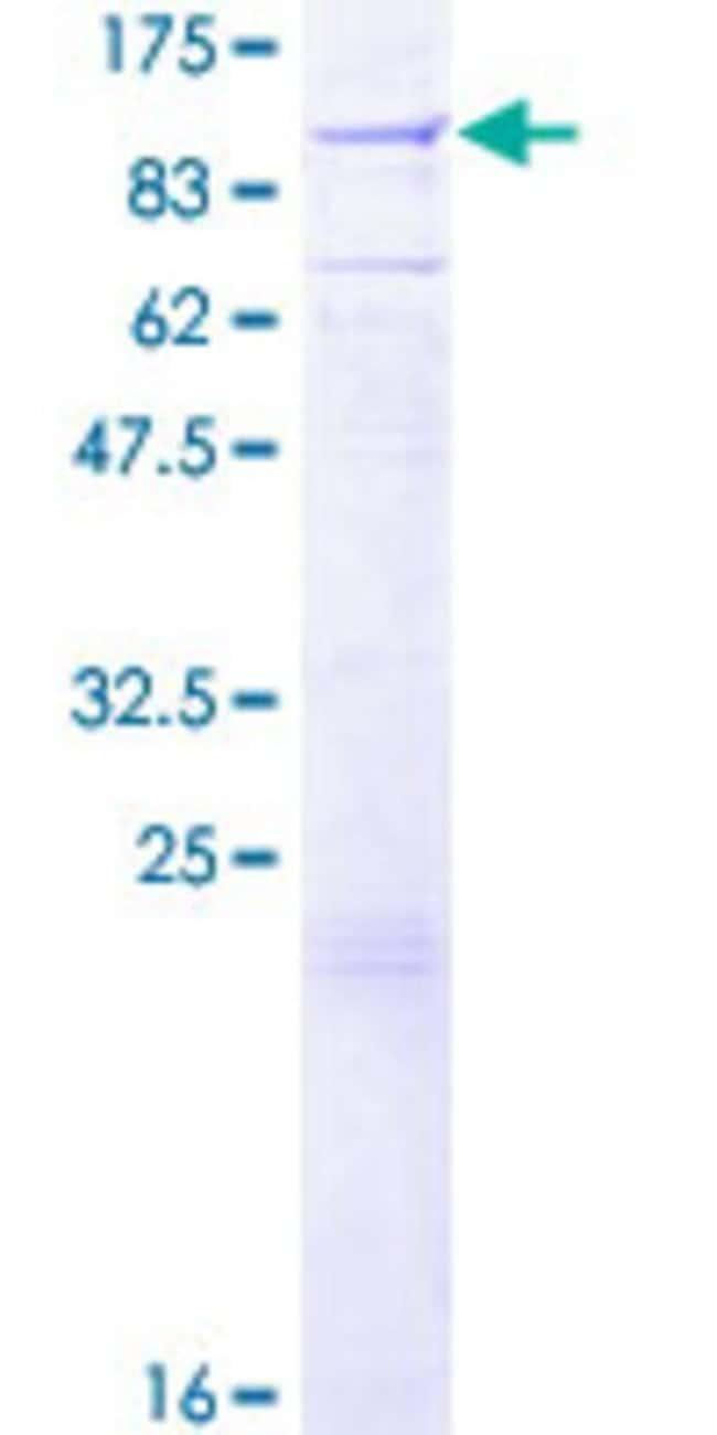 AbnovaHuman EXT1 Full-length ORF (NP_000118.2, 1 a.a. - 746 a.a.) Recombinant
