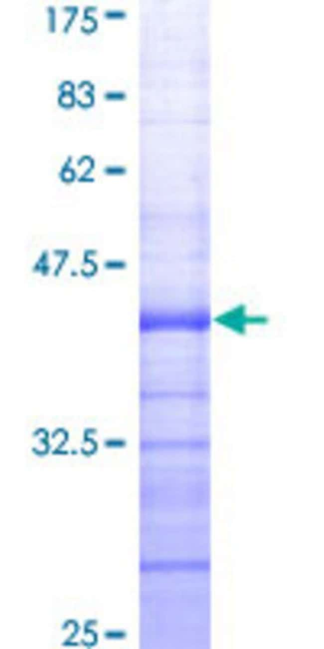 Abnova™Human EZH2 Partial ORF (AAH10858, 1 a.a. - 110 a.a.) Recombinant Protein with GST-tag at N-terminal 10μg Abnova™Human EZH2 Partial ORF (AAH10858, 1 a.a. - 110 a.a.) Recombinant Protein with GST-tag at N-terminal