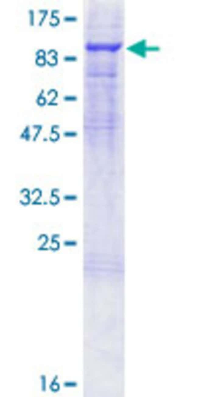 Abnova™Human F2 Full-length ORF (NP_000497.1, 1 a.a. - 622 a.a.) Recombinant Protein with GST-tag at N-terminal 25μg Abnova™Human F2 Full-length ORF (NP_000497.1, 1 a.a. - 622 a.a.) Recombinant Protein with GST-tag at N-terminal