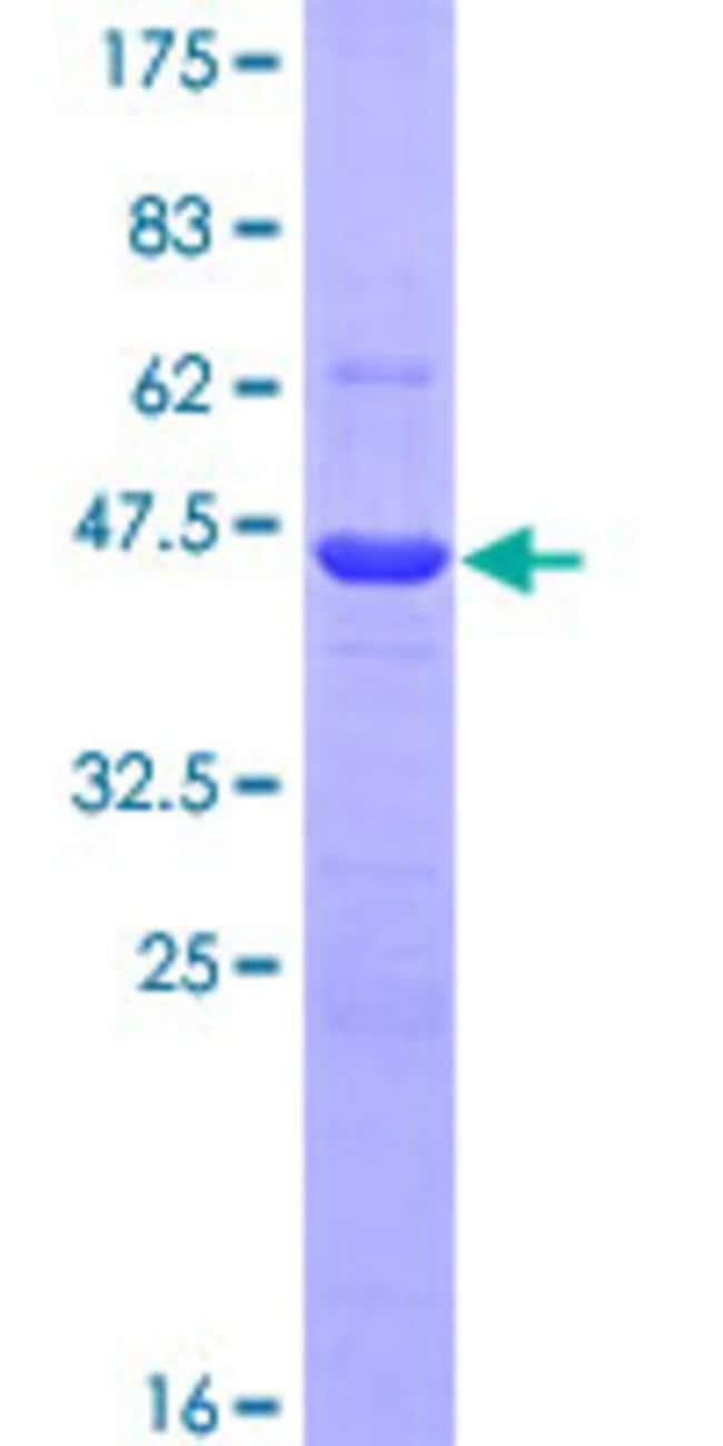 Abnova™Human F2 Partial ORF (AAH51332, 263 a.a. - 362 a.a.) Recombinant Protein with GST-tag at N-terminal 10μg Abnova™Human F2 Partial ORF (AAH51332, 263 a.a. - 362 a.a.) Recombinant Protein with GST-tag at N-terminal