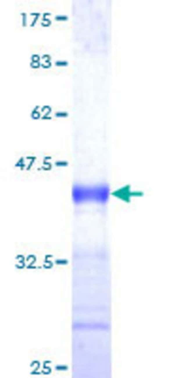 Abnova™Human F7 Partial ORF (NP_000122, 103 a.a. - 212 a.a.) Recombinant Protein with GST-tag at N-terminal 10μg Abnova™Human F7 Partial ORF (NP_000122, 103 a.a. - 212 a.a.) Recombinant Protein with GST-tag at N-terminal