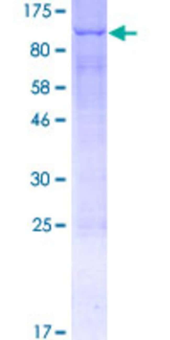 AbnovaHuman ACSL3 Full-length ORF (NP_004448.2, 1 a.a. - 720 a.a.) Recombinant