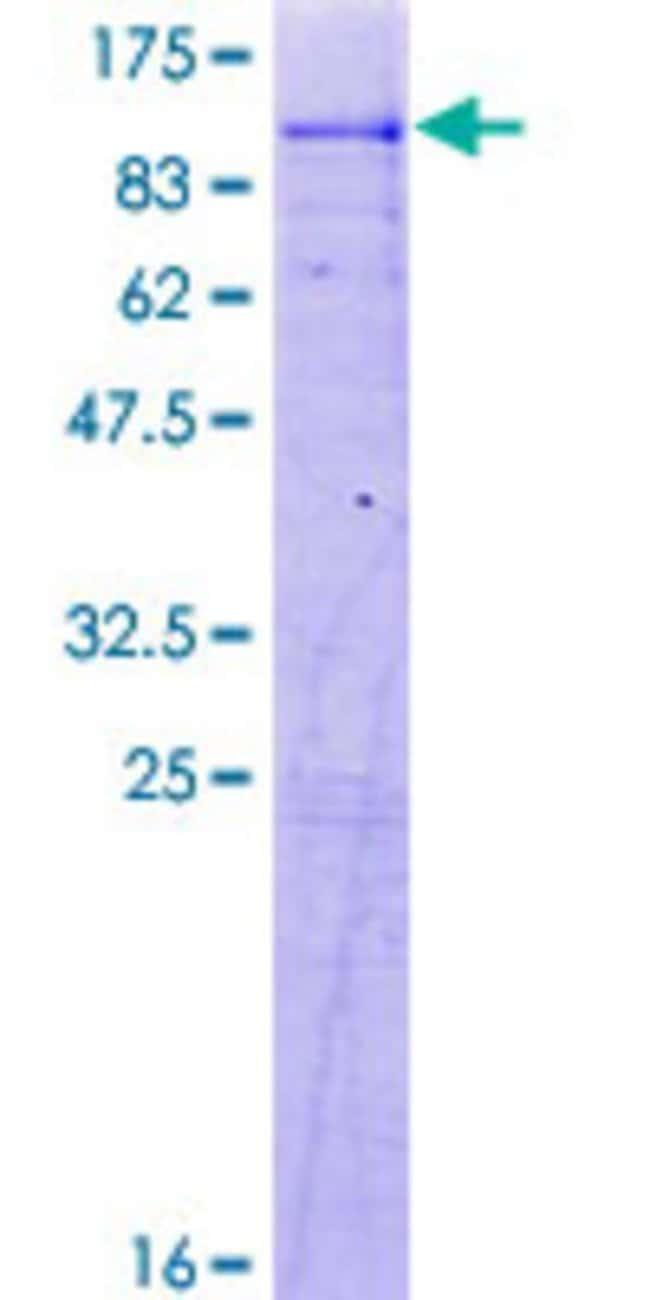 AbnovaHuman ACSL4 Full-length ORF (NP_004449.1, 1 a.a. - 670 a.a.) Recombinant