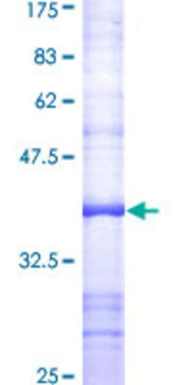Abnova™Human FAP Partial ORF (AAH26250, 525 a.a. - 624 a.a.) Recombinant Protein with GST-tag at N-terminal 25μg Abnova™Human FAP Partial ORF (AAH26250, 525 a.a. - 624 a.a.) Recombinant Protein with GST-tag at N-terminal