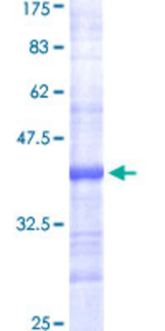 Abnova™Human FASN Partial ORF (NP_004095, 2378 a.a. - 2477 a.a.) Recombinant Protein with GST-tag at N-terminal 10μg Abnova™Human FASN Partial ORF (NP_004095, 2378 a.a. - 2477 a.a.) Recombinant Protein with GST-tag at N-terminal