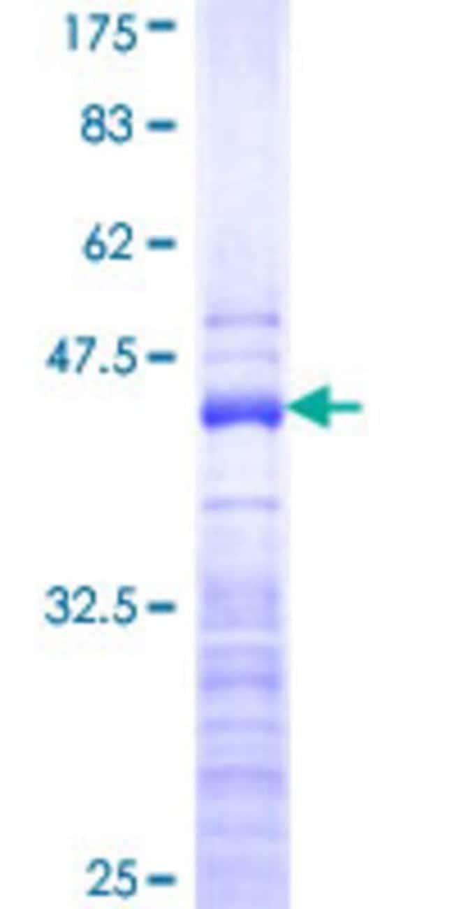 Abnova™Human FAU Partial ORF (NP_001988, 35 a.a. - 133 a.a.) Recombinant Protein with GST-tag at N-terminal 10μg Abnova™Human FAU Partial ORF (NP_001988, 35 a.a. - 133 a.a.) Recombinant Protein with GST-tag at N-terminal