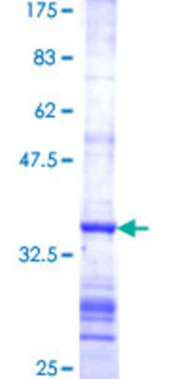 Abnova™Human FDXR Partial ORF (NP_077728, 394 a.a. - 491 a.a.) Recombinant Protein with GST-tag at N-terminal 25μg Abnova™Human FDXR Partial ORF (NP_077728, 394 a.a. - 491 a.a.) Recombinant Protein with GST-tag at N-terminal