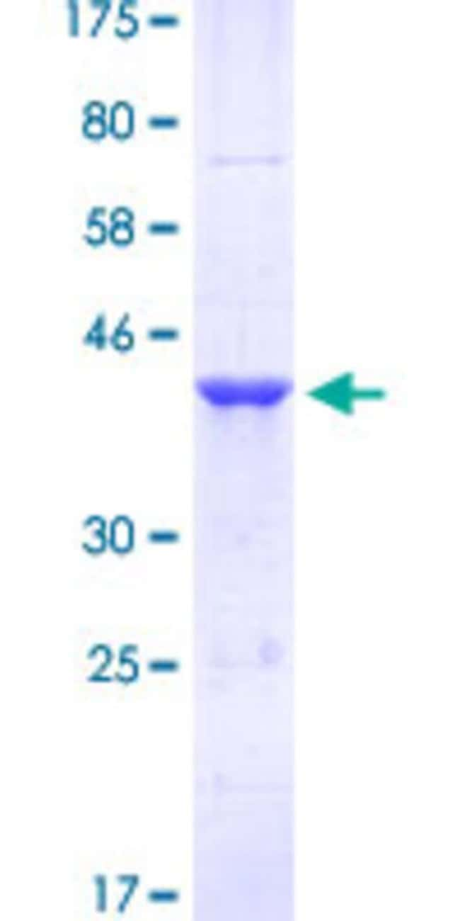 Abnova™Human FOXM1 Partial ORF (NP_973731, 22 a.a. - 110 a.a.) Recombinant Protein with GST-tag at N-terminal 10μg Abnova™Human FOXM1 Partial ORF (NP_973731, 22 a.a. - 110 a.a.) Recombinant Protein with GST-tag at N-terminal