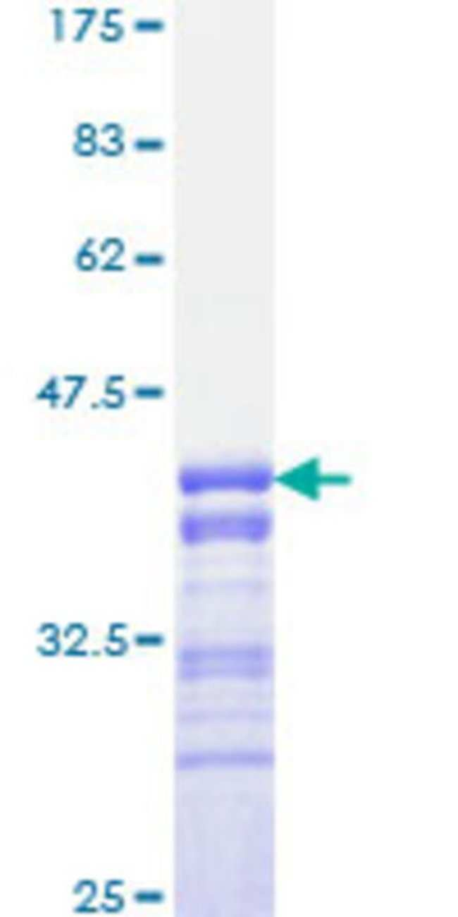 Abnova™Human FOXO3A Partial ORF (AAH21224, 361 a.a. - 460 a.a.) Recombinant Protein with GST-tag at N-terminal 10μg Abnova™Human FOXO3A Partial ORF (AAH21224, 361 a.a. - 460 a.a.) Recombinant Protein with GST-tag at N-terminal