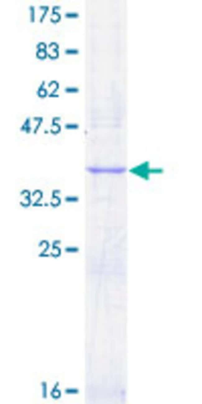 Abnova™Human FLT1 Partial ORF (AAH39007, 581 a.a. - 687 a.a.) Recombinant Protein with GST-tag at N-terminal 25μg Abnova™Human FLT1 Partial ORF (AAH39007, 581 a.a. - 687 a.a.) Recombinant Protein with GST-tag at N-terminal