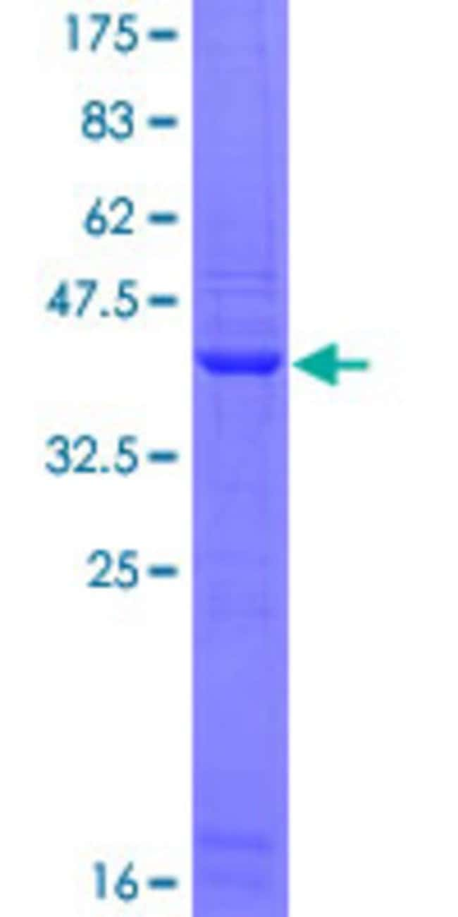 Abnova™Human FLT4 Partial ORF (NP_002011, 34 a.a. - 133 a.a.) Recombinant Protein with GST-tag at N-terminal 25μg Abnova™Human FLT4 Partial ORF (NP_002011, 34 a.a. - 133 a.a.) Recombinant Protein with GST-tag at N-terminal
