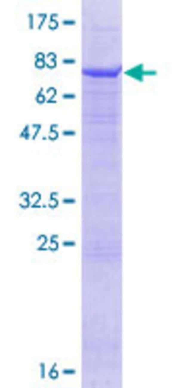 Abnova™Human FMO2 Full-length ORF (NP_001451.1, 1 a.a. - 471 a.a.) Recombinant Protein with GST-tag at N-terminal 10μg Abnova™Human FMO2 Full-length ORF (NP_001451.1, 1 a.a. - 471 a.a.) Recombinant Protein with GST-tag at N-terminal