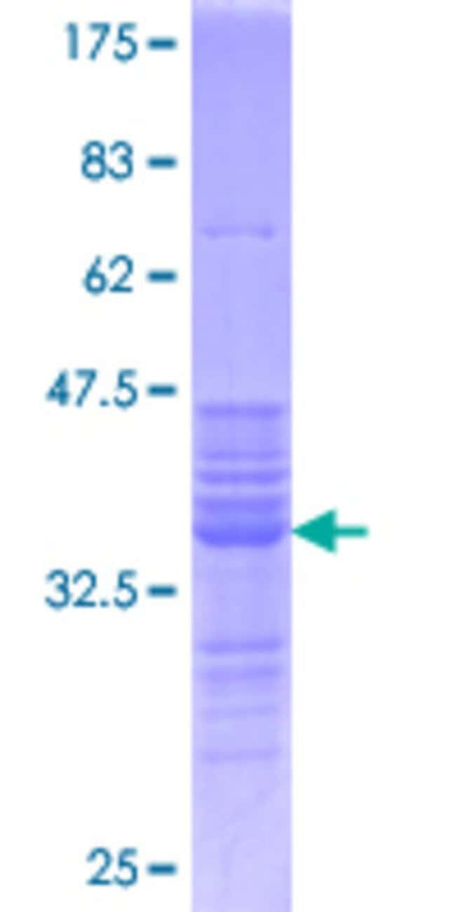 Abnova™Human FOS Partial ORF (NP_005243.1, 1 a.a. - 100 a.a.) Recombinant Protein with GST-tag at N-terminal 10μg Abnova™Human FOS Partial ORF (NP_005243.1, 1 a.a. - 100 a.a.) Recombinant Protein with GST-tag at N-terminal