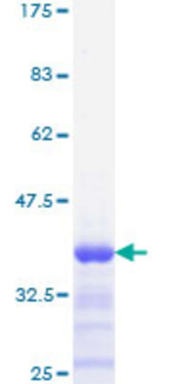Abnova™Human FOSL2 Partial ORF (NP_005244, 207 a.a. - 296 a.a.) Recombinant Protein with GST-tag at N-terminal 10μg Abnova™Human FOSL2 Partial ORF (NP_005244, 207 a.a. - 296 a.a.) Recombinant Protein with GST-tag at N-terminal