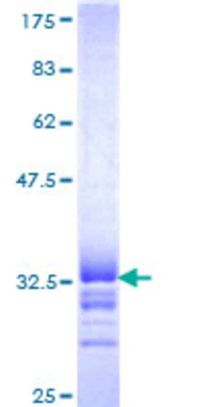 Abnova™Human FZD2 Partial ORF (NP_001457, 192 a.a. - 245 a.a.) Recombinant Protein with GST-tag at N-terminal 10μg Abnova™Human FZD2 Partial ORF (NP_001457, 192 a.a. - 245 a.a.) Recombinant Protein with GST-tag at N-terminal
