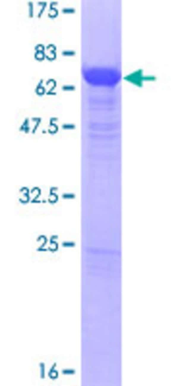 Abnova™Human GABPB2 Full-length ORF (NP_005245.2, 1 a.a. - 395 a.a.) Recombinant Protein with GST-tag at N-terminal 25μg Abnova™Human GABPB2 Full-length ORF (NP_005245.2, 1 a.a. - 395 a.a.) Recombinant Protein with GST-tag at N-terminal