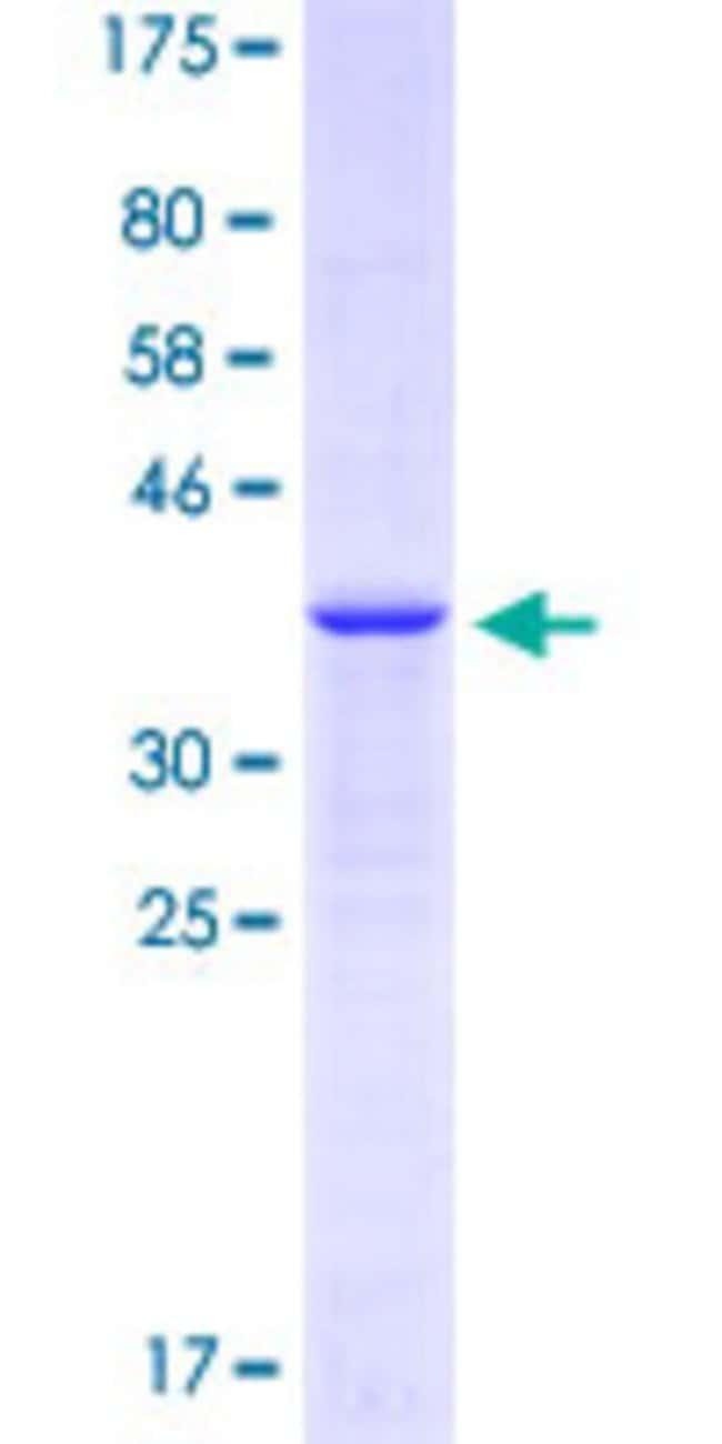 Abnova™Human GABRA4 Partial ORF (NP_000800.2, 401 a.a. - 500 a.a.) Recombinant Protein with GST-tag at N-terminal 25μg Abnova™Human GABRA4 Partial ORF (NP_000800.2, 401 a.a. - 500 a.a.) Recombinant Protein with GST-tag at N-terminal