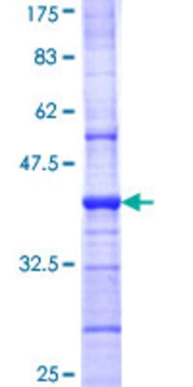 Abnova™Human GABRB1 Partial ORF (NP_000803, 28 a.a. - 136 a.a.) Recombinant Protein with GST-tag at N-terminal 10μg Abnova™Human GABRB1 Partial ORF (NP_000803, 28 a.a. - 136 a.a.) Recombinant Protein with GST-tag at N-terminal