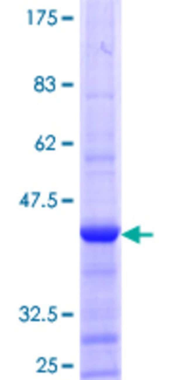 AbnovaHuman ACOT8 Partial ORF (NP_005460.2, 108 a.a. - 215 a.a.) Recombinant